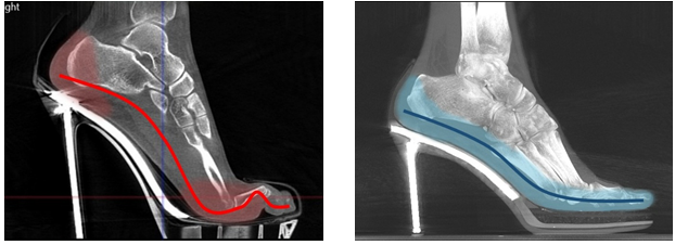 Pictured above are two images, the one on the left showing an x-ray of a foot in a normal high heel, the one on the right showing an x-ray of a foot in Joan Oloff Shoes